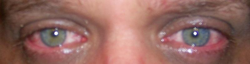 Глаза слезятся от сварки что делать в домашних условиях 999