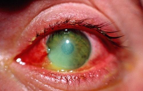 думали, что травма глаза куда обращаться в краснодаре шуба: качество, цена